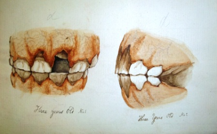 Illustration by Edward Mayhew the teeth of a three year old horse